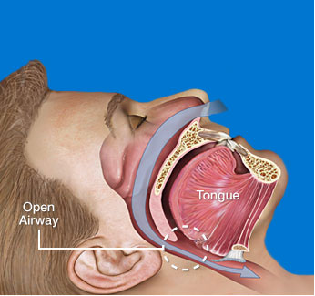 Non-Obstructed Airway